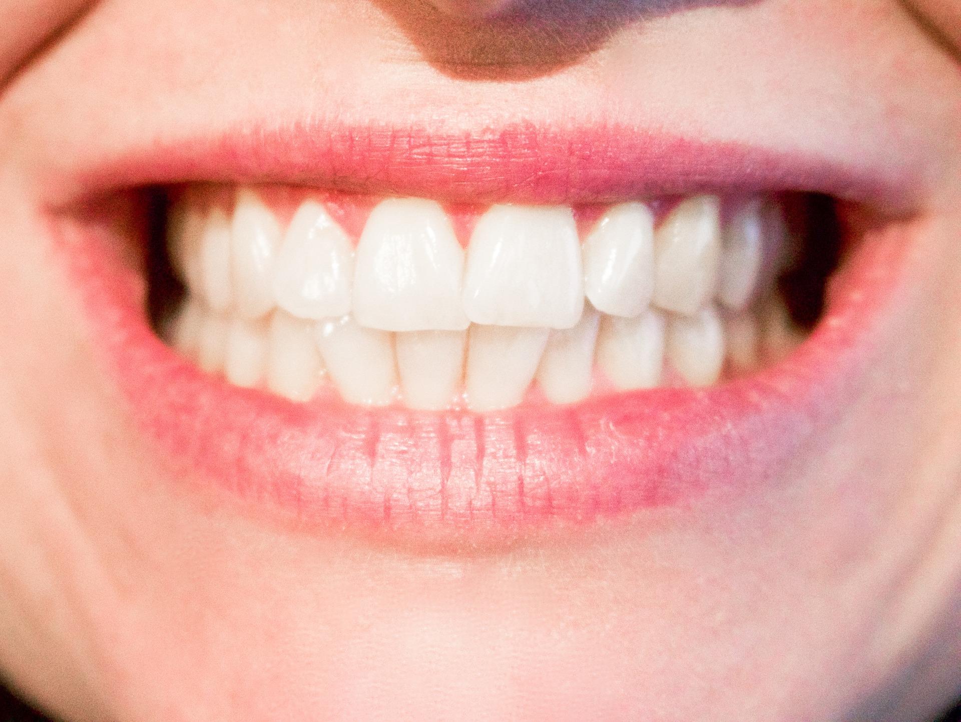Verschiedene Zahnarten Und Ihre Funktionen