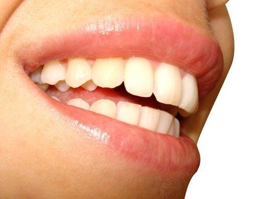 Die Richtige Zahnhygiene Für Ein Schönes Lächeln